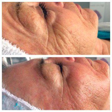 JetPeel: Hautglättung und Faltenreduzierung. Vorher-/Nachher-Bild. Anne Bielig.