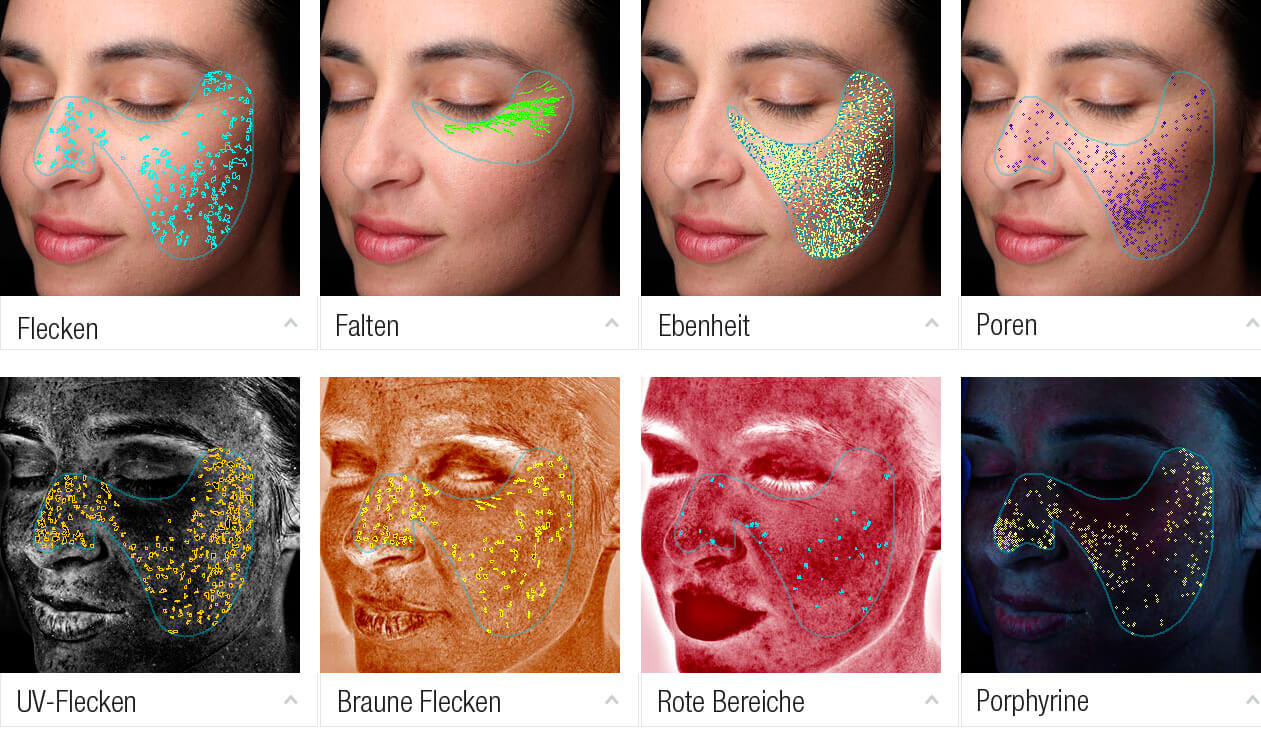 3D-Hautanalyse mit VISIA®